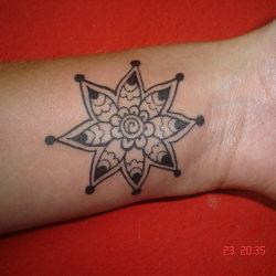 Tattoo Removal in Delhi